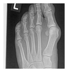 X-ray image preoperative