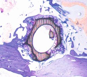 Histologische Aufnahme MAGNEZIX® CS, einige Monate