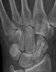 Radiografía directamente después de la operación