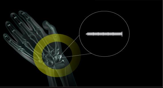 Keyvisual MAGNEZIX® Pins