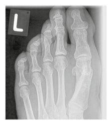 X-ray image follow-up one year