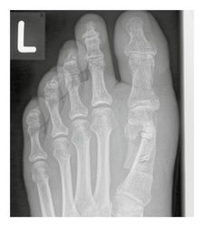 X-ray image follow-up