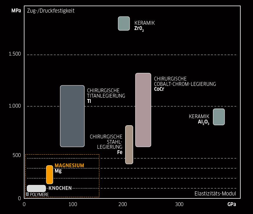 Biomechanische Eigenschaften (Festigkeit und Elastizität) von Implantatwerkstoffen im Vergleich